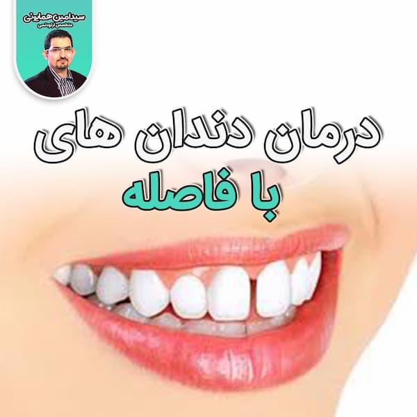 دندان های با فاصله و در مان آن ها