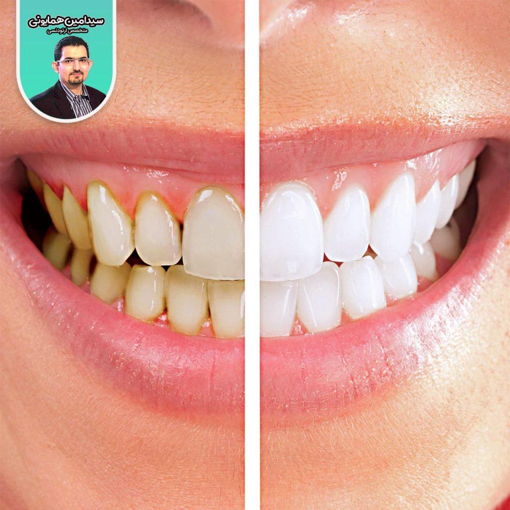 دلایل تغیر رنگ دندان ها