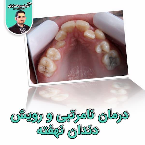درمان نامرتبی و رویش دندان نهفته