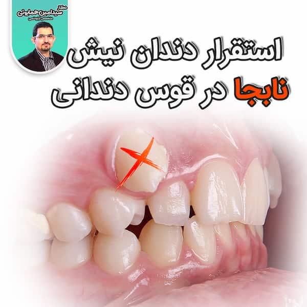 استقرار دندان نیش نابجا در قوس دندانی