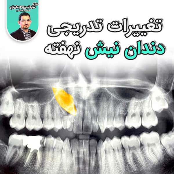 تغییرات تدریجی دندان نیش نهفته