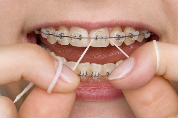 نخ دندان حین ارتودنسی