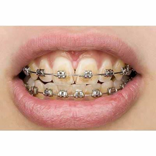 زرد شدن دندان حین ارتودنسی