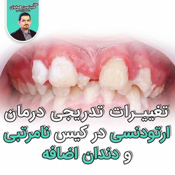 تغییرات تدریجی درمان ارتودنسی در کیس نامرتبی و دندان اضافه