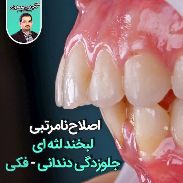 اصلاح لخند لثه ای جلوزدگی فکی دندانی