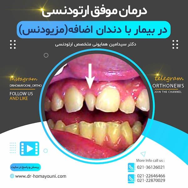 درمان موفق ارتودنسی در بیمار با دندان اضافه(مزیودنس)