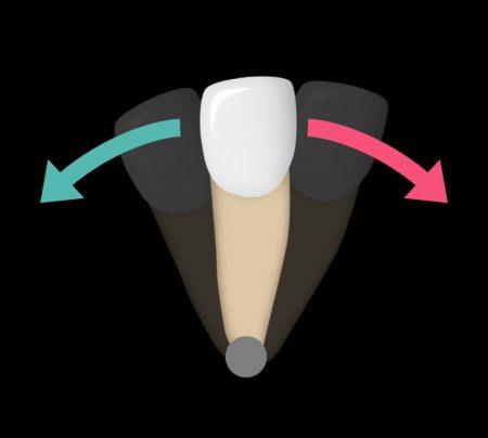 چگونه براکت ها دندان های من را حرکت می دهند؟