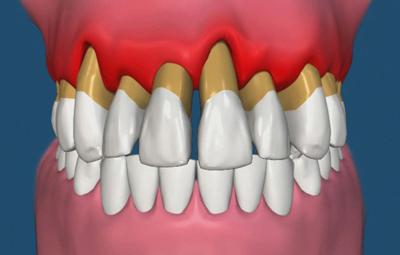 نکاتی پیرامون سلامت و بهداشت دهان در دوره یائسگی