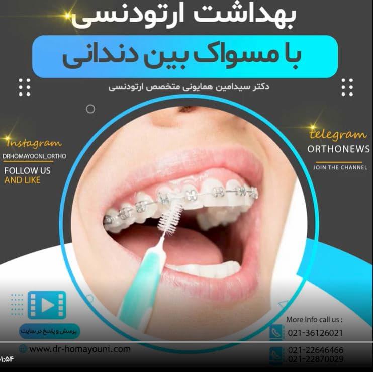 بهداشت ارتودنسی با مسواک های بین دندانی