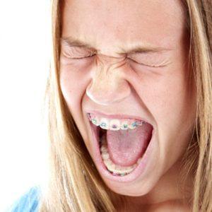 آیا براکت ارتودنسی درد ایجاد میکند؟