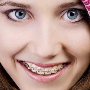 تاثیر ارتودنسی بر بینی